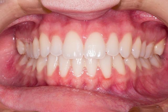odhalené dásně